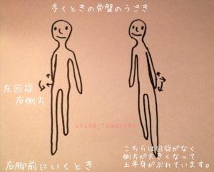 歩く骨盤の動き