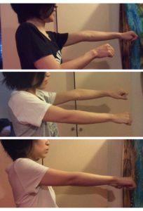両手を伸ばして使いたい。 肘肩の可動域改善例