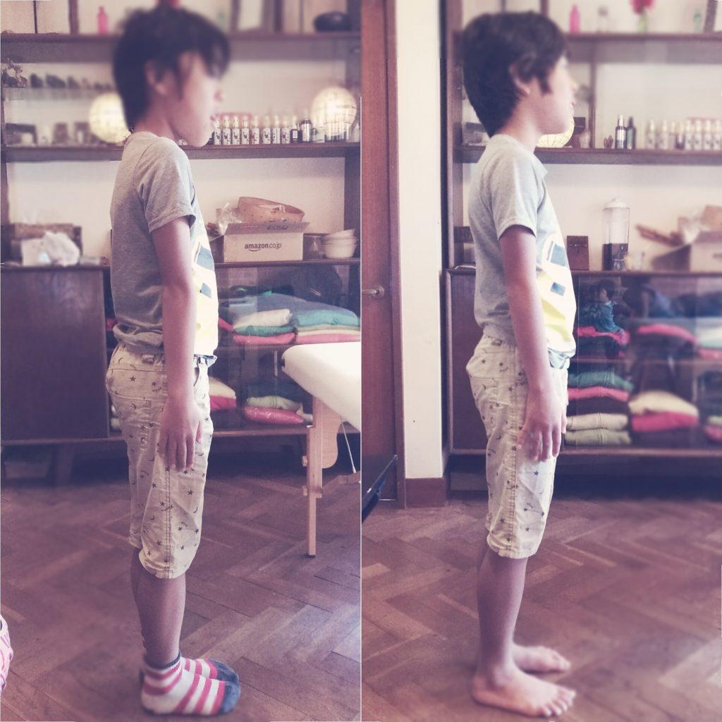 子どもの整体姿勢改善